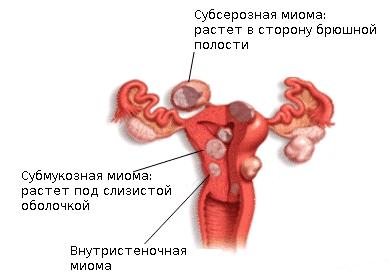 Симптомы и лечение миомы матки