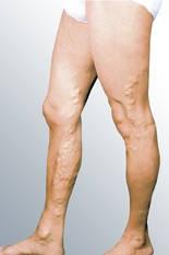 Варикоз и язвы на ногах лечить