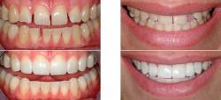 Процедура восстановления зубов
