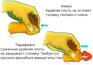 как увеличить хуй дома Ленинск-Кузнецкий