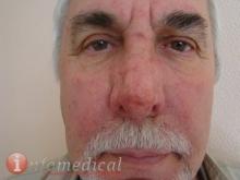Ринофима. Хирург - Труфанов 1-2