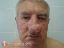 Ринофима. Хирург - Труфанов 2-1
