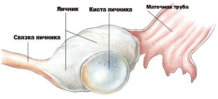 Киста яичника